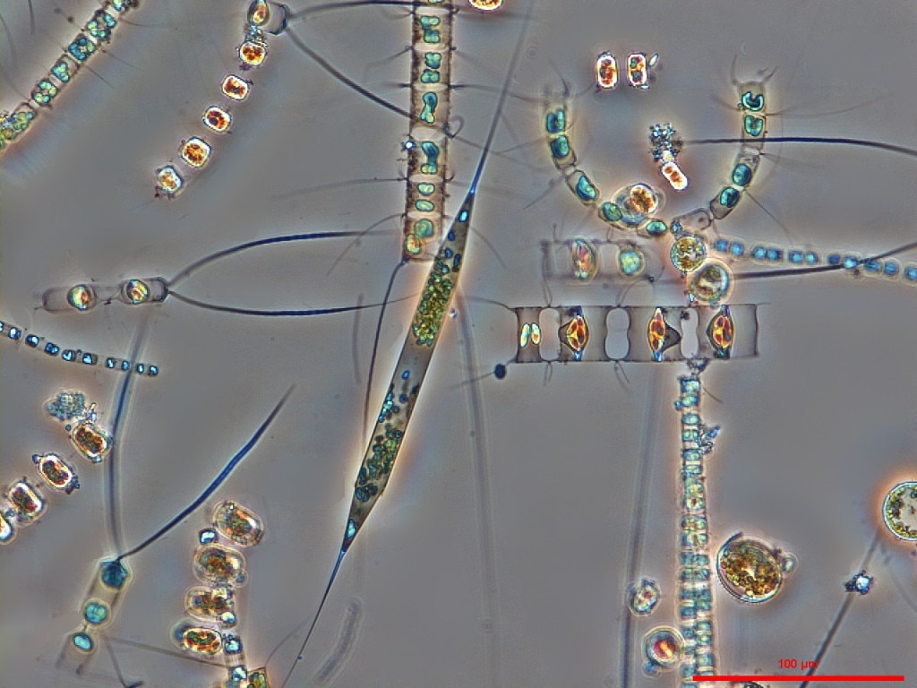 Karl Bruun, Nostoca Algae Laboratory, photo courtesy of Nikon Small World